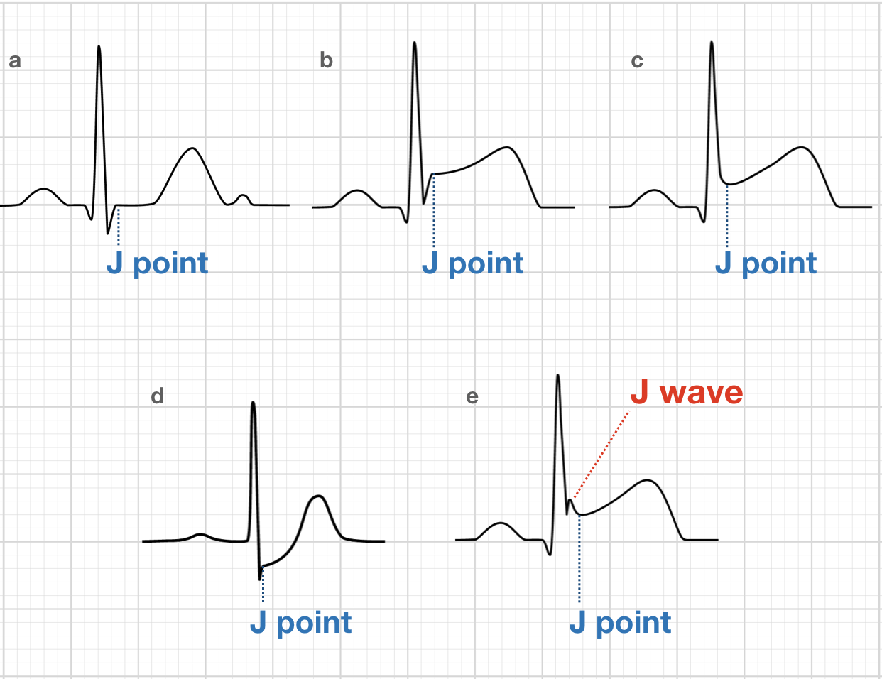 ECG J point J wave J point elevation
