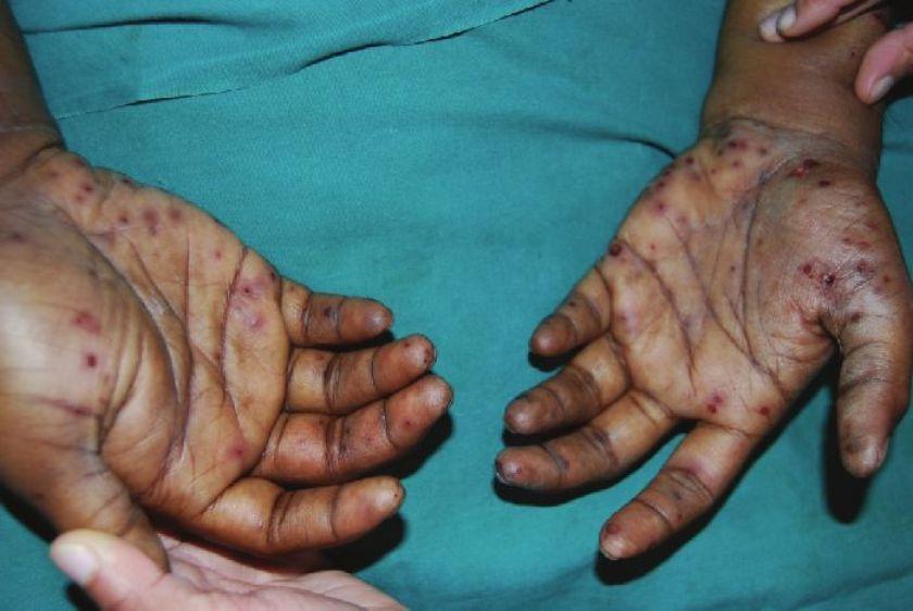 Janeway lesions - Revisited Reddy IS, Gowrishankar S - Indian J Dermatol  Venereol Leprol