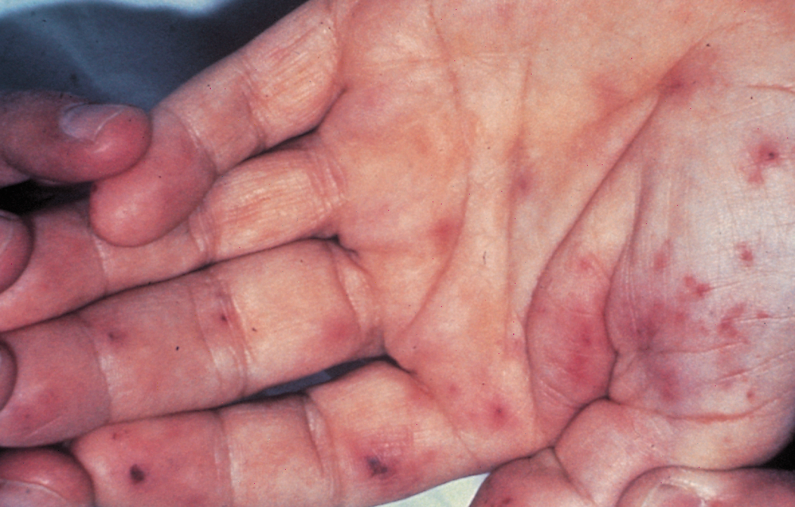 Infective Endocarditis (Janeway Lesions)