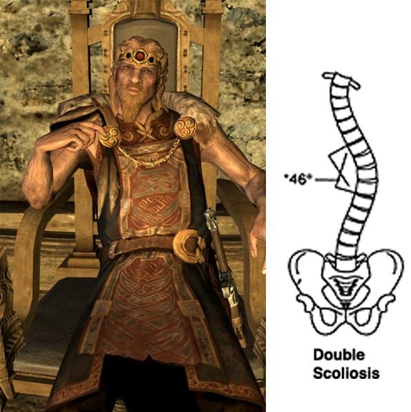 [Skyrim] Scoliosis level: Jarl