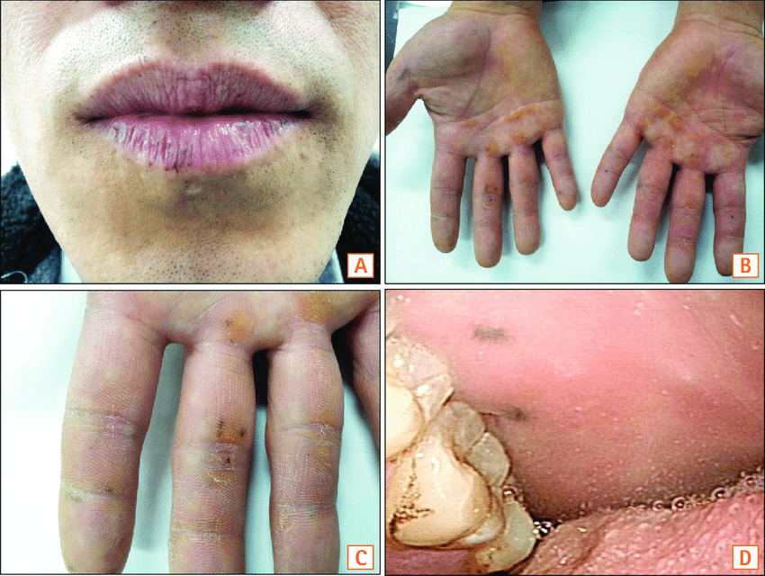 Typical mucocutaneous pigmentation of Peutz-Jeghers syndrome. (A) Typical  pigmentation on the vermilion border of the lips. (B) Pigmentation on the  volar