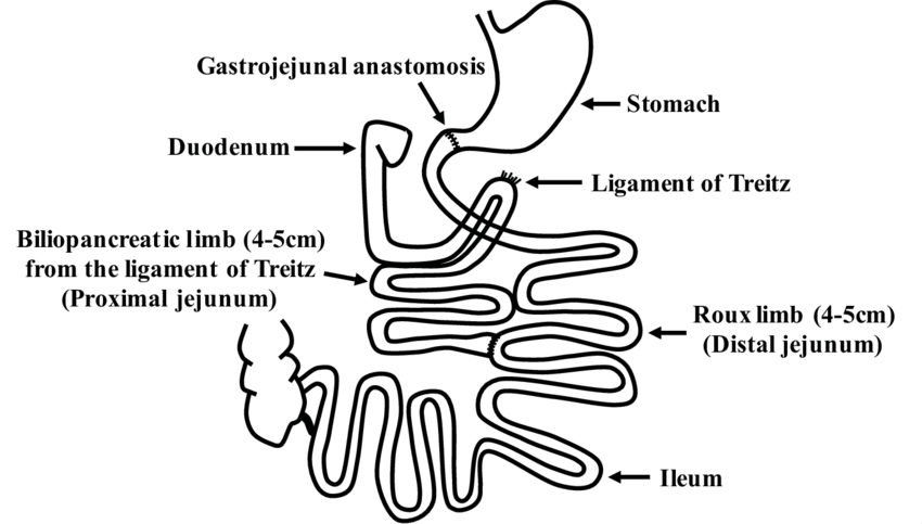 Schematic representation of duodenal-jejunal bypass surgery (DJB). Standard  DJB surgery was adopted in our study. Duodenum and proximal jejunum (4-5cm