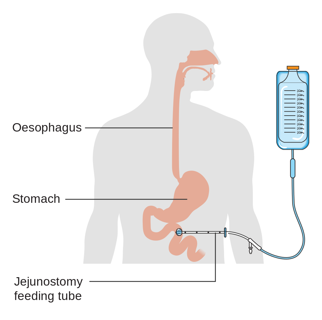 Archivo:Diagram showing the position of a percutaneous jejunostomy feeding  tube CRUK 342.svg