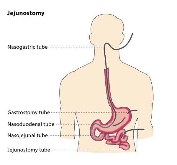 To minimise the risk of puncturing the colon, the interventional  radiologist may administer a contrast liquid into your colon the day before  the jejunostomy