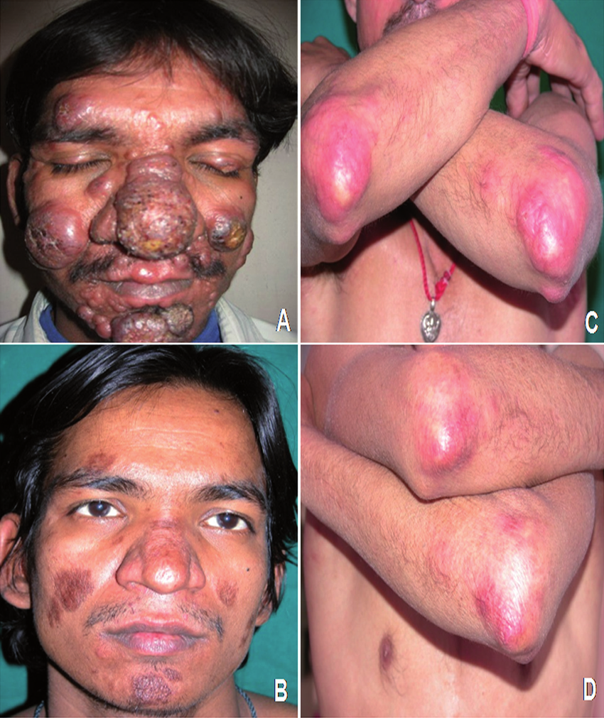 Patients with post-kala-azar dermal leishmaniasis (PKDL) treated  successfully with amphotericin-B (AmB) alone, and with AmB in combination  with miltefosine