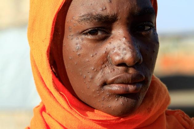More than 2 million S-Sudanese at risk of Kala-azar