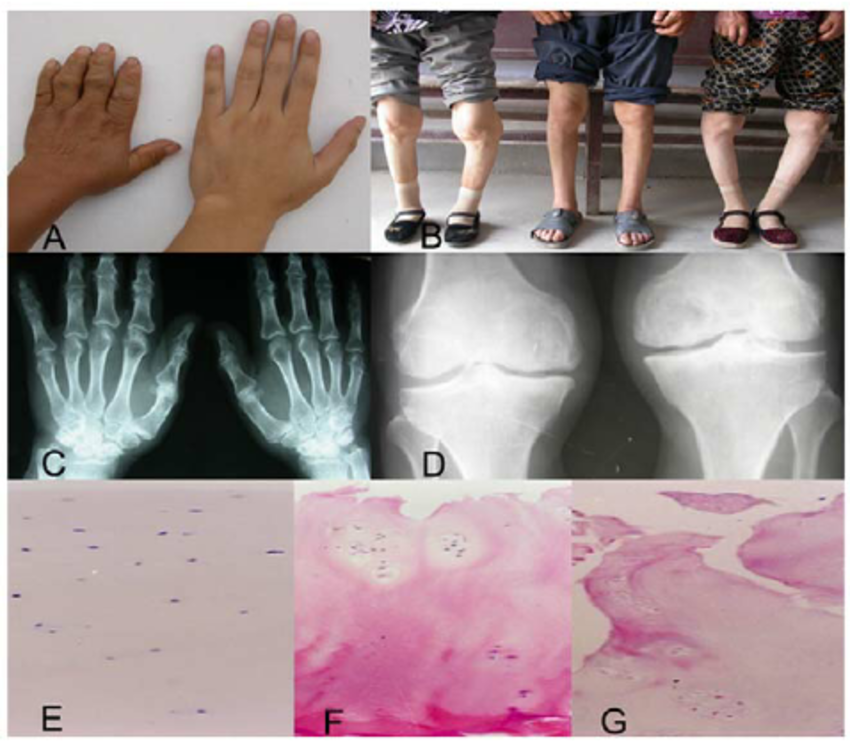 Characteristics of Kashin-Beck disease (KBD). A&B, images of left hand(A,  left male patient aged 55 years) and knees (B, left female patient aged 44  years,