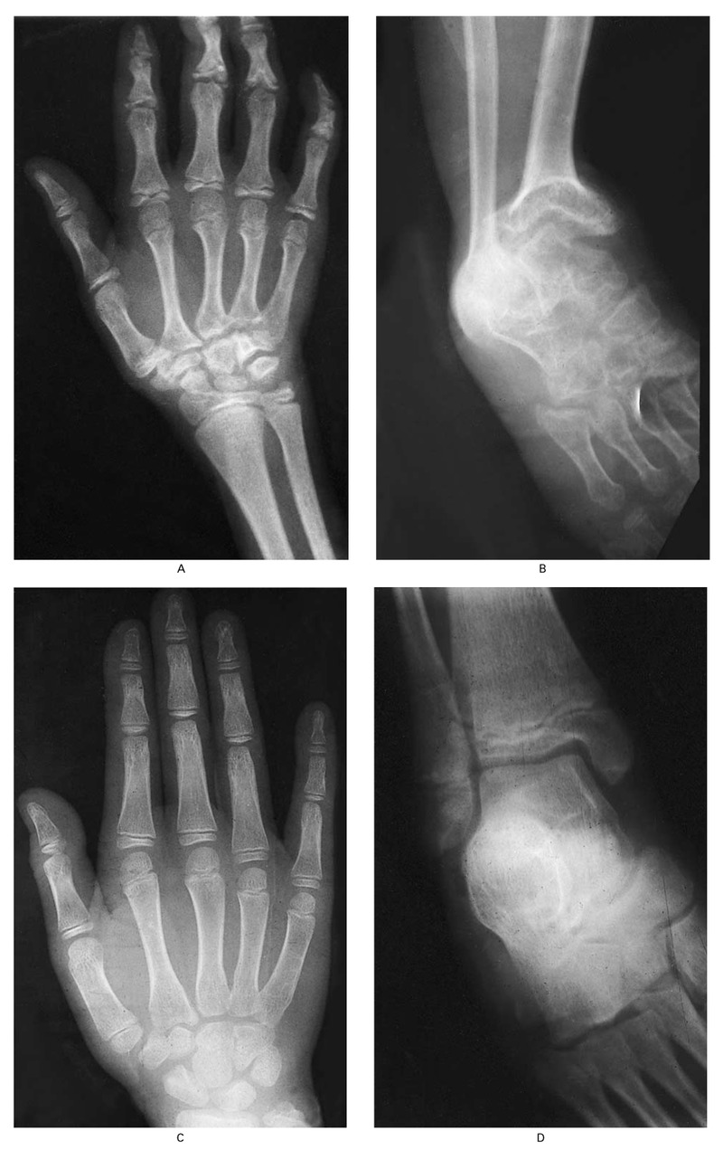 Radiographs of the Left Hand and Left Ankle of a 14-Year-Old Boy with Kashin –Beck Disease (Panels A and B) and of the Left Hand and Left Ankle of a  Normal