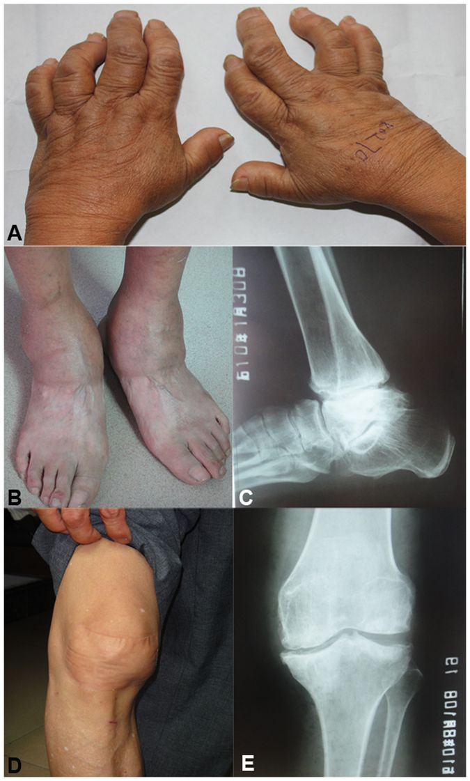 Comparison of microRNA expression profiles of Kashin-Beck disease,  osteoarthritis and rheumatoid arthritis | Scientific Reports