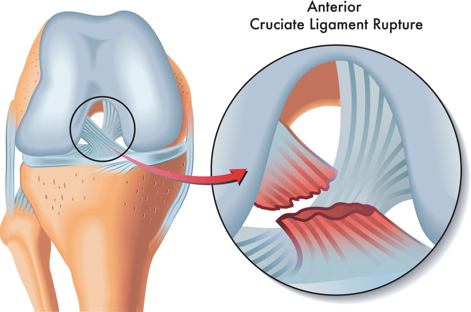 ¿Se puede regenerar el desgarro del Ligamento Colateral Anterior (LCA)? Por  Marc Darrow