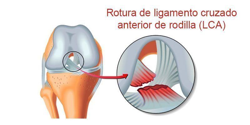 lca lesiones más frecuentes Rotura del ligamento cruzado anterior de  rodilla Traumatólogo