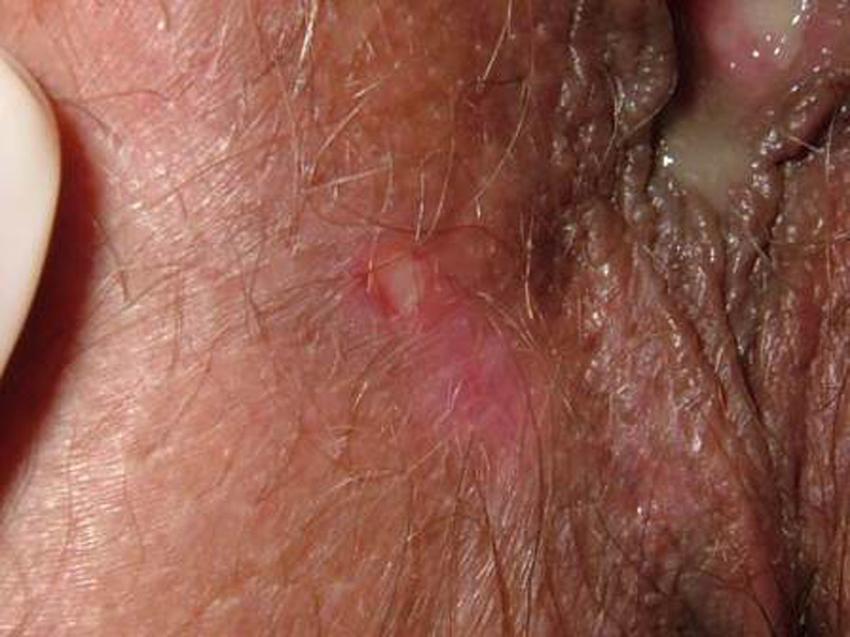 Genital ulcer on the right labia majora.