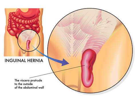 Open Inguinal-Femoral Hernia Repair by Traveller Location (2)