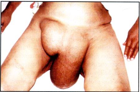 labial hernia