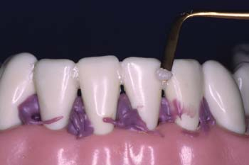 Apply composite in labial interproximals. To reduce the possibility of the  teeth rotating and debonding, apply a small amount of tooth shade filled