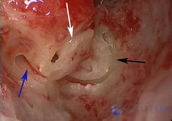 labyrinthectomy