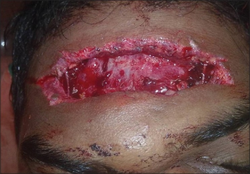 Clinical photograph showing lacerated wound in the fore head