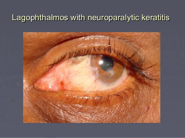 Lagophthalmos with neuroparalytic keratitis; 30.
