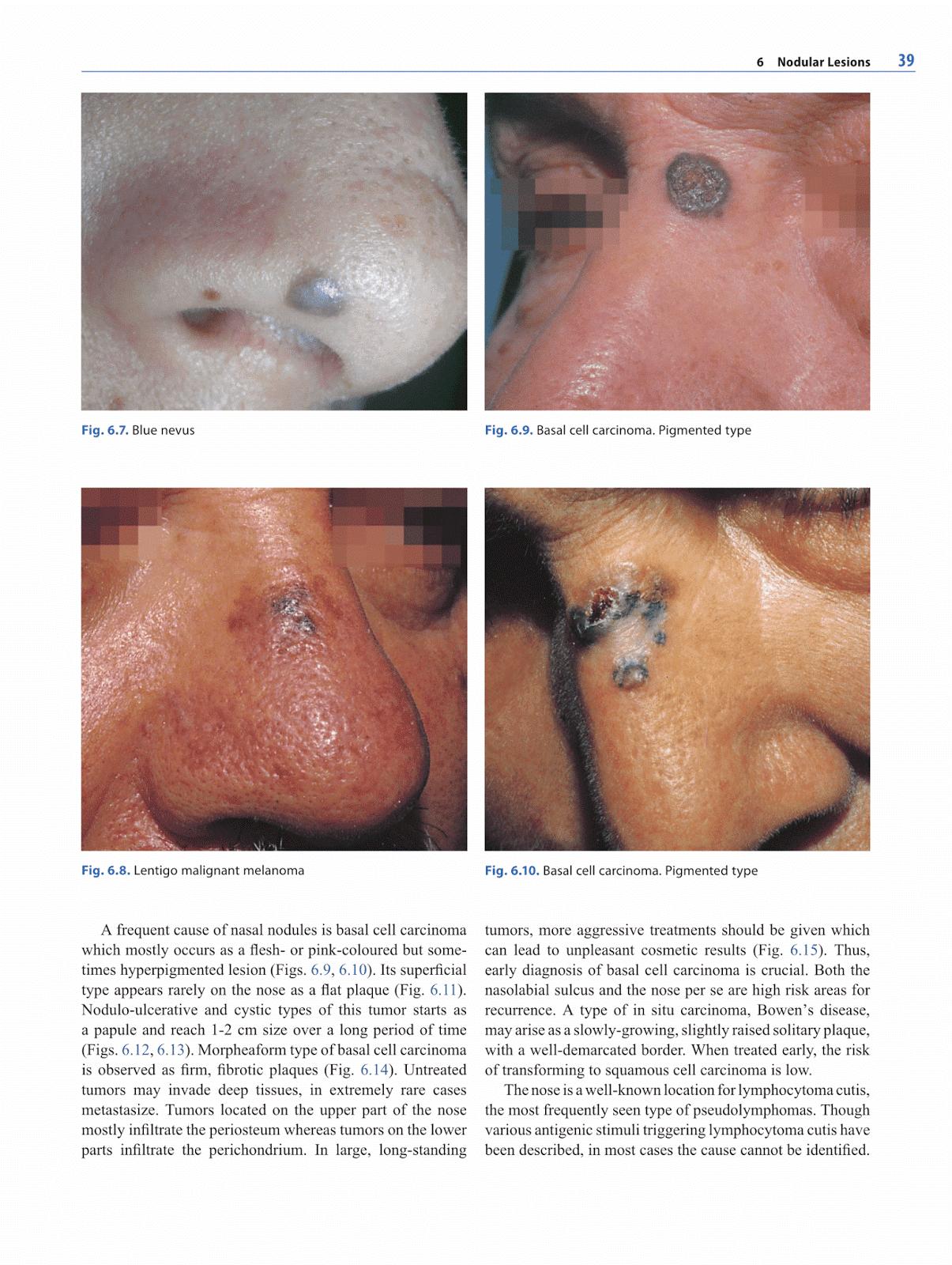 Otolaryngology alexandros sfakianakis lesions of the nose png 1205x1600  Basal cell dermatology encapsulated neuroma cutis