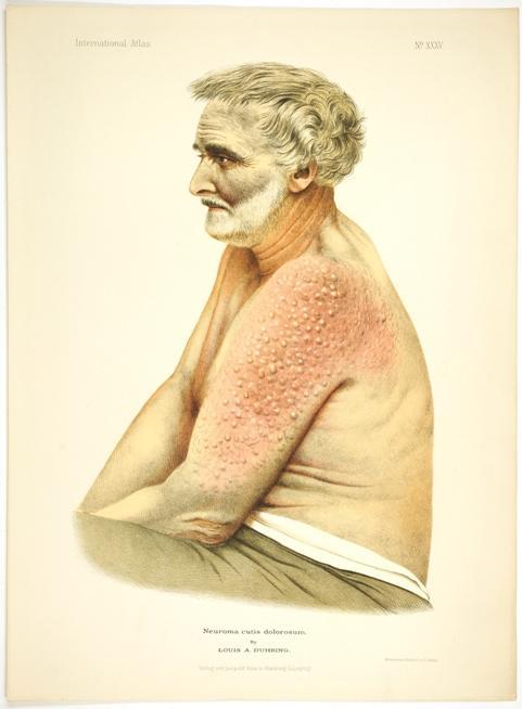 A Case of Neuroma Cutis Dolorosum.: Duhring, Louis A.