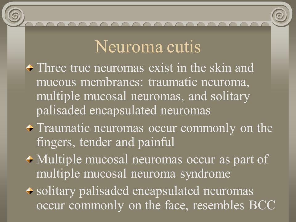 16 Neuroma cutis
